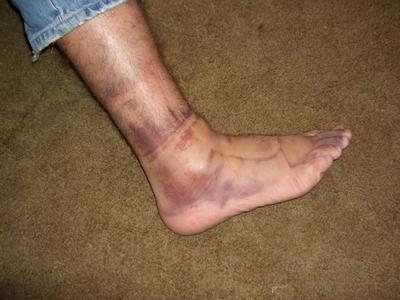 Z foot 2